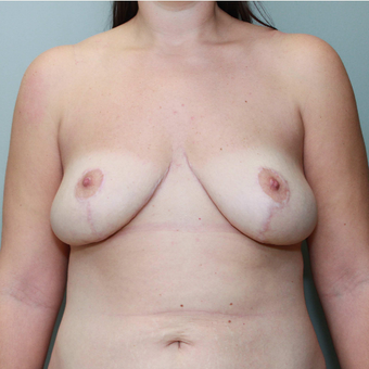 35-44 year old woman treated with Breast Reduction after 3069778