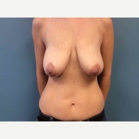 Breast Reconstruction before 2483412