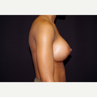 25-34 year old woman treated with Breast Implants after 3439907