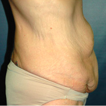 45 year old woman treated with Tummy Tuck before 3578524