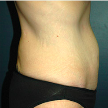45 year old woman treated with Tummy Tuck after 3578524