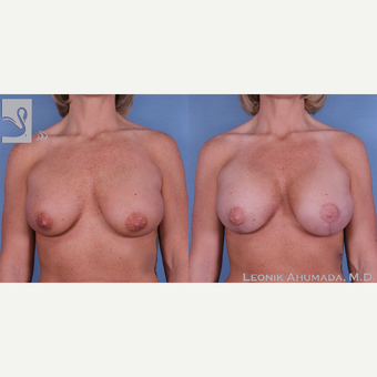 25-34 year old woman treated with Saline implant removal and Silicone implant replacement with lift before 3093392