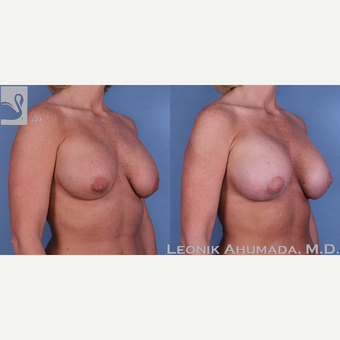 25-34 year old woman treated with Saline implant removal and Silicone implant replacement with lift after 3093392