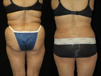 66 Year-Old Woman Treated for Bulky Fat of Bra Rolls, Flanks, and Waist before 837441