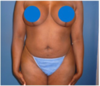 35-44 year old woman treated with Liposuction before 3670718