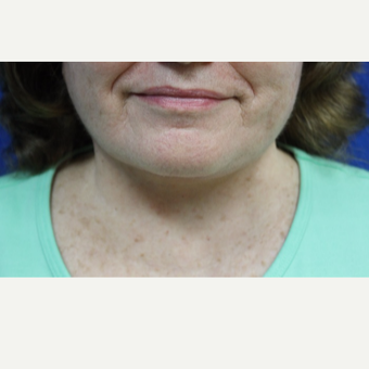 65-74 year old woman treated with Neck Lift after 3747221