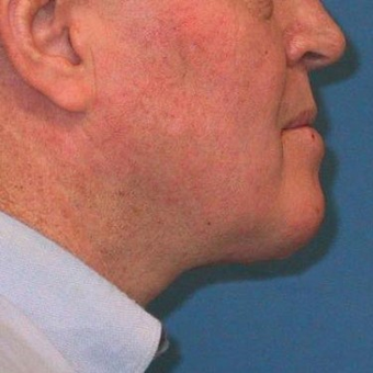 45-54 year old man treated with Neck Lift after 3497173