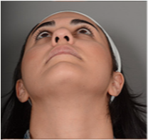 25-34 year old woman treated with Rhinoplasty 3056449
