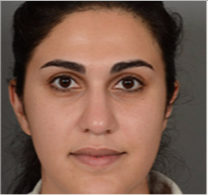 25-34 year old woman treated with Rhinoplasty after 3056449