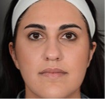 25-34 year old woman treated with Rhinoplasty before 3056449