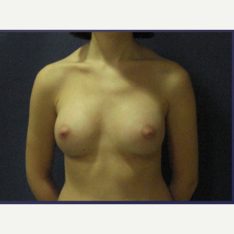 18-24 year old woman treated with Breast Implants after 3480390