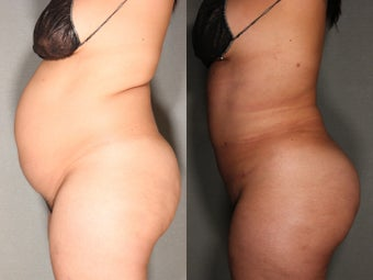 26 Year Old Female Treated For Unwanted Fat and Fat Transfer To Buttocks
