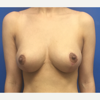 25-34 year old woman treated with Breast Reduction after 3091333
