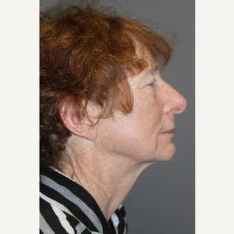 55-64 year old woman treated with Brow Lift before 3147954
