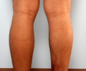 Calf Implants before 934895