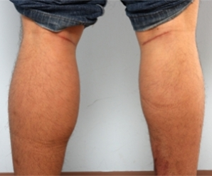 Calf Implants after 934895