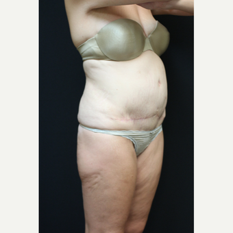 30 year old woman treated with Liposuction after 3089201
