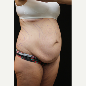 30 year old woman treated with Liposuction before 3089201