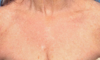 55-64 year old woman treated with IPL