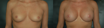 32 Year Old Female Treated for Breast Augmentation before 1075163