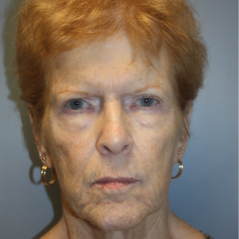 65-74 year old woman treated with Facelift before 3808357