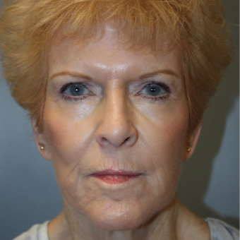 65-74 year old woman treated with Facelift after 3808357