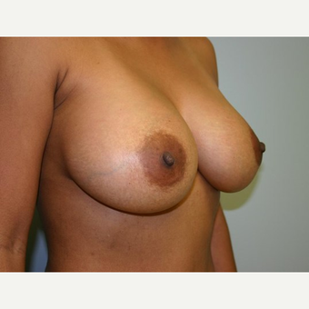 Breast Augmentation after 3560793