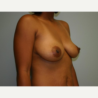 Breast Augmentation before 3560793