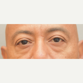 49 year old man treated with Eye Bags Treatment