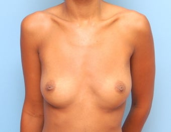 Breast augmentation before 249592