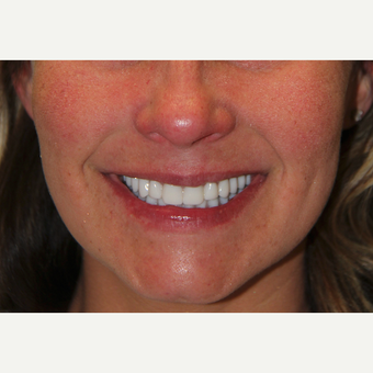 All-on-4 Dental Implants after 2373214
