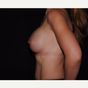 25-34 year old woman treated with Breast Implants after 3593680