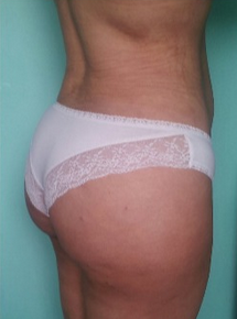 Preoperatively, the buttocks are literally inverted (V-shape). 1800394