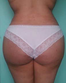 Preoperatively, the buttocks are literally inverted (V-shape). after 1800394