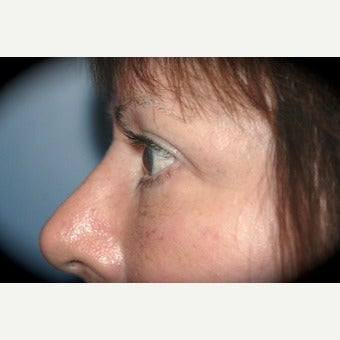Eye Bags Treatment after 2554069