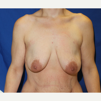 25-34 year old woman treated with Breast Lift with Implants before 3454025