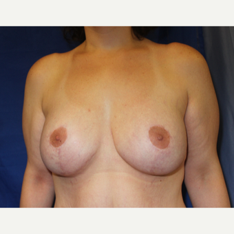 25-34 year old woman treated with Breast Lift with Implants after 3454025