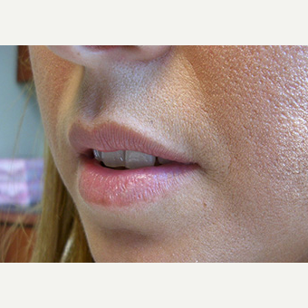 Woman treated with Lip Augmentation before 1708252