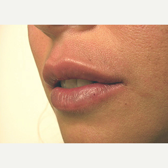 Woman treated with Lip Augmentation after 1708252