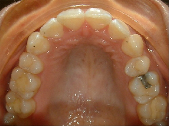 Invisalign treatment for rotated, uneven teeth after 881822