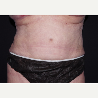 65-74 year old woman treated with Liposuction after 3439506