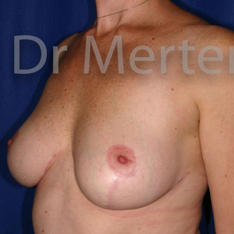 Breast Reduction after 3681306
