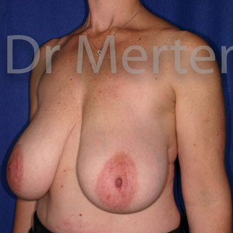 Breast Reduction before 3681306