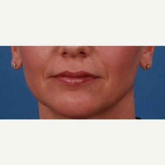 45-54 year old woman treated with Juvederm before 2185788