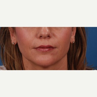 45-54 year old woman treated with Juvederm after 2185788