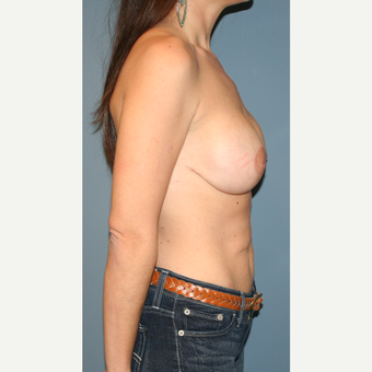 18-24 year old woman treated with Breast Lift with Implants after 3475121