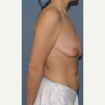 18-24 year old woman treated with Breast Lift with Implants before 3475121