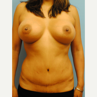 40 year old woman treated with Mommy Makeover, 455 cc silicone ultra high profile after 3624076