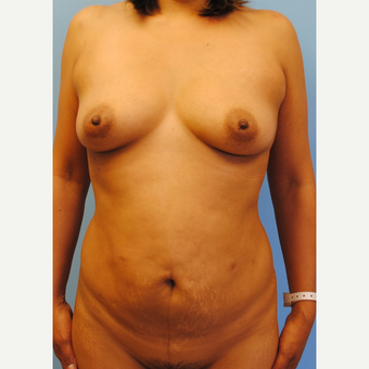 40 year old woman treated with Mommy Makeover, 455 cc silicone ultra high profile before 3624076