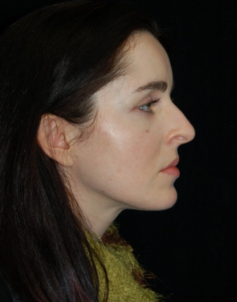 Nose Surgery - Rhinoplasty before 1253154